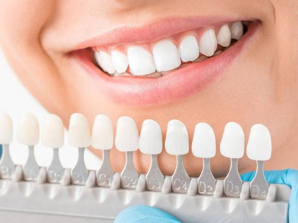 Cosmetic Dentistry & Teeth Whitening