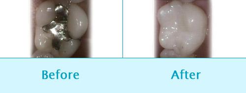 Dental Filling Befor and After